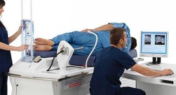 El c ncer de pr stata con ultrasonido dirigido podr a - Tratamiento para carcoma ...